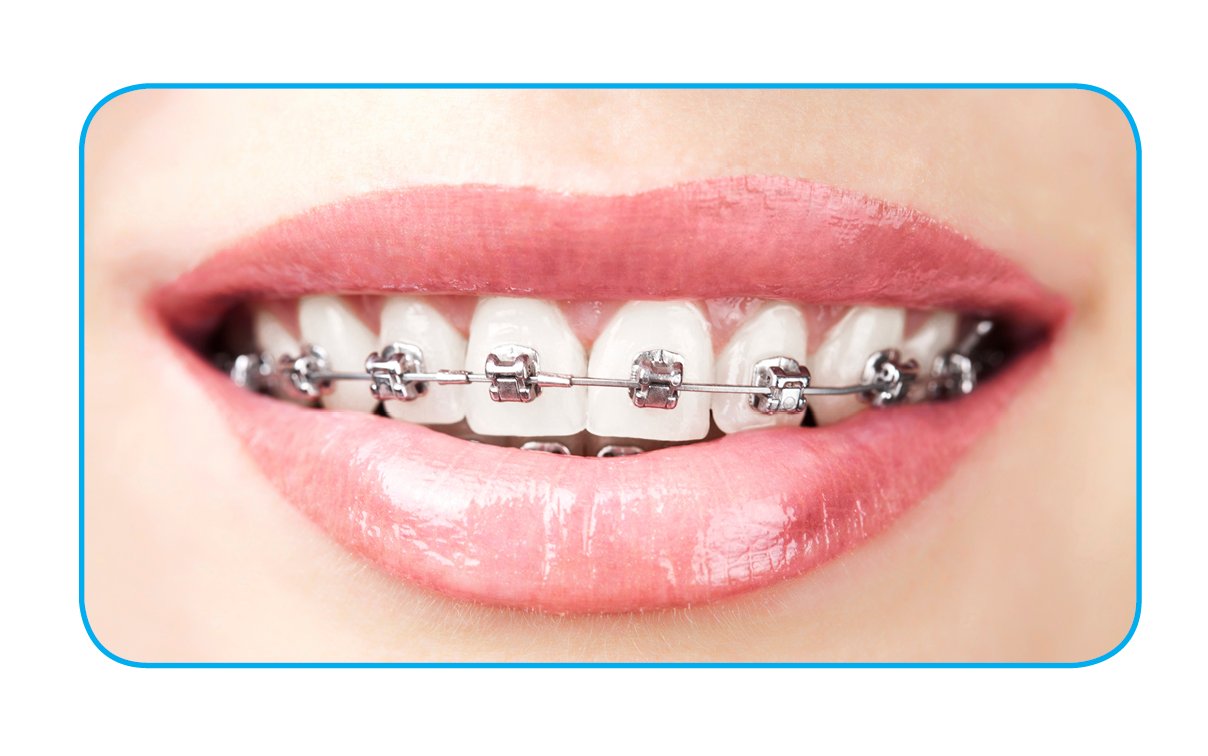 FDA Approves Eclipse Designed Orthodontic Device – Eclipse